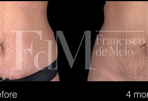 Liposuction: Plastic Surgery  Dubai