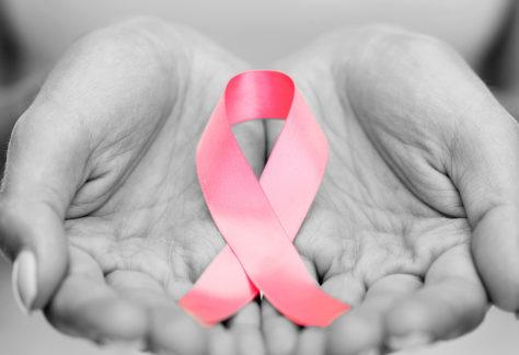 Q&A: Breast Reconstruction